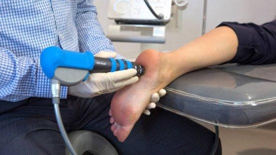 Ударно-волновая терапия на стопу