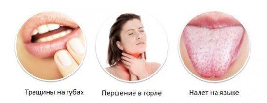 Проблемы с ротовой полостью